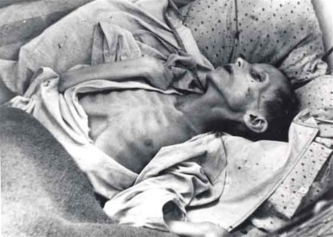 Famine: Starving child in the Poltava region, 1933 (Photo: H. Pshenychny Archives)