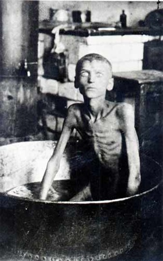 A starving child during the Famine of 1921-22.