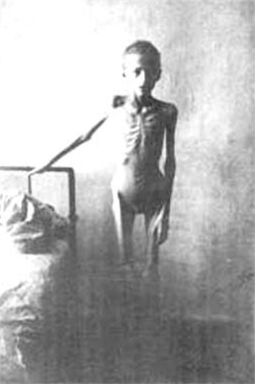 Image - A victim of the Famine-Genocide of 1932-3.