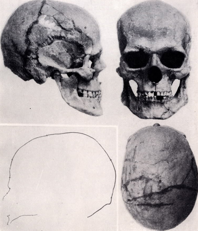 Image - A skull excavated at the Vovnihy burial site.